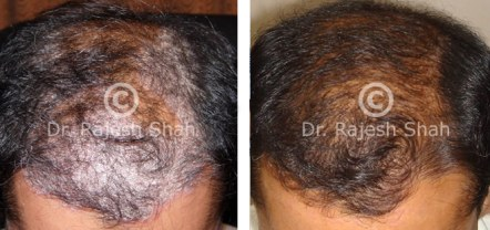 psoriasis head scalp